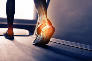 Plantar Fasciitis Treatment | Advanced PMR